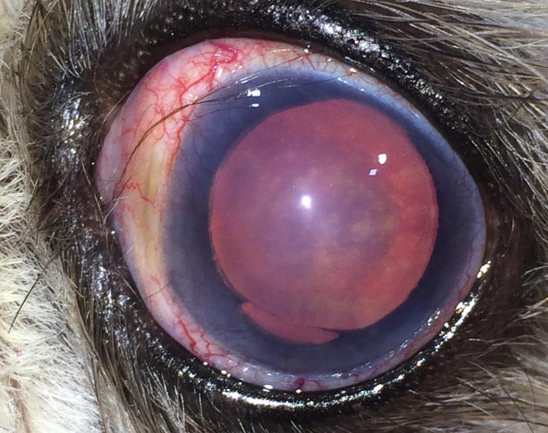 ¿Qué es el glaucoma y cómo se trata?